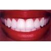 zubki.jpg
